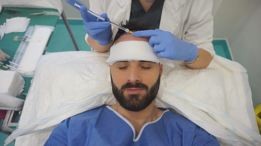 anesthésie cuir chevelu